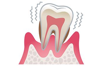 歯周病が及ぼす全身への影響