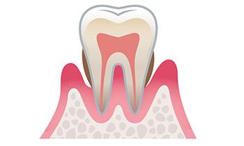 歯周病予防について